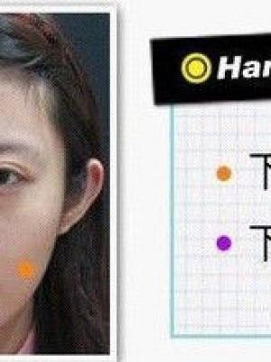 瓜子脸 她就是一位下颌角整形的受益者